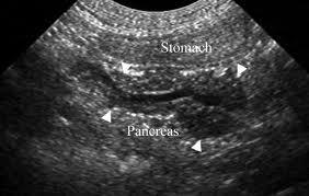 pancreasultrasound